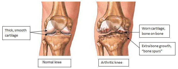 bone-on-bone knee pain